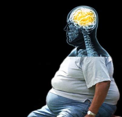 Obezitenin psikolojik sebepleri.