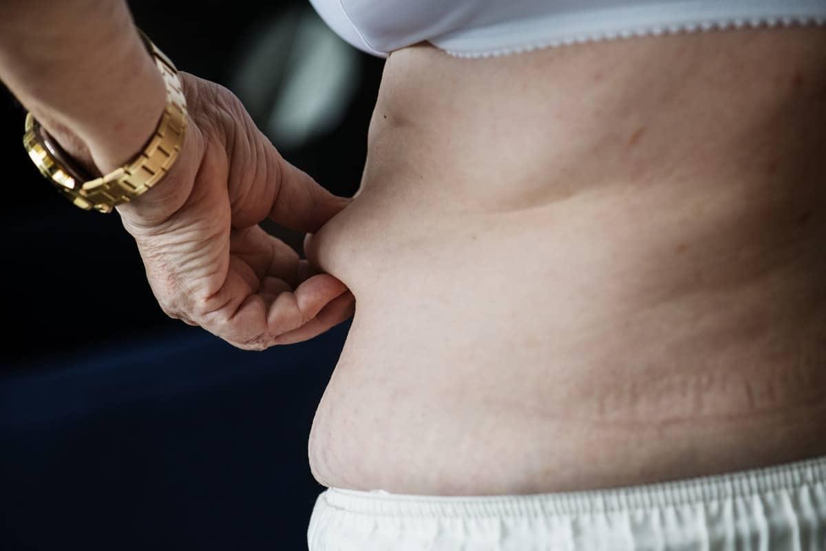 Obezite cilt kanserine neden oluyor